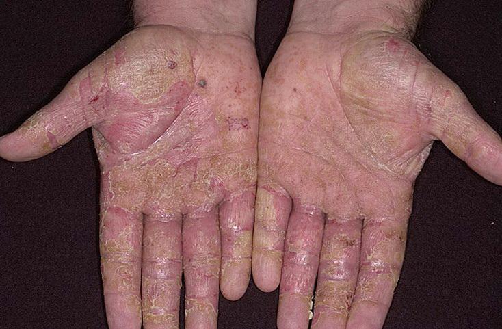 195Как лечить болезни ногтей на руках