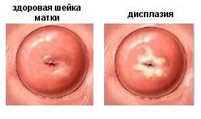 Как бороться с вирусом папилломы человека 16