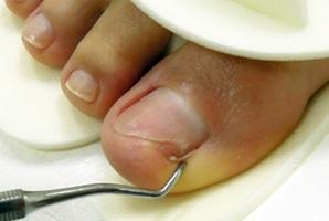 От грибка ногтя у ребенка