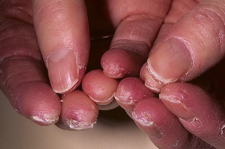 Экзема на пальцах рук фото
