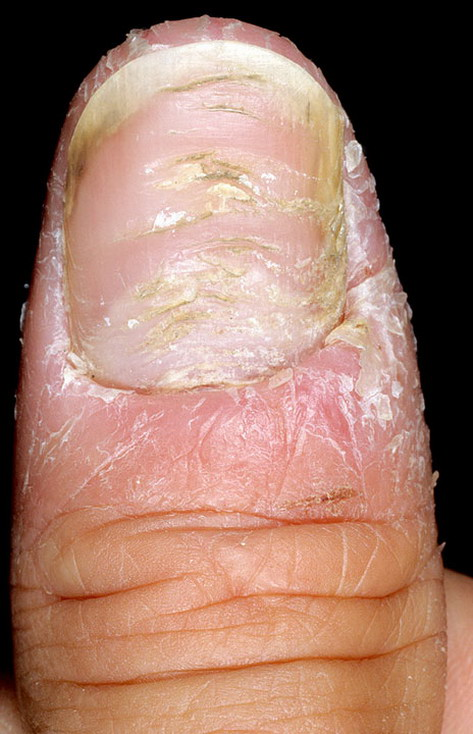 Хвороба Шкіри Псоріаз