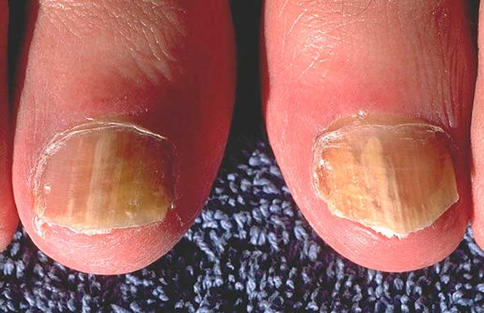 Грибок ног первые симптомы и лечение
