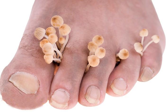 Эффективный способ от грибка ногтей