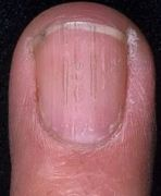 Я вылечил ногтевой грибок сам