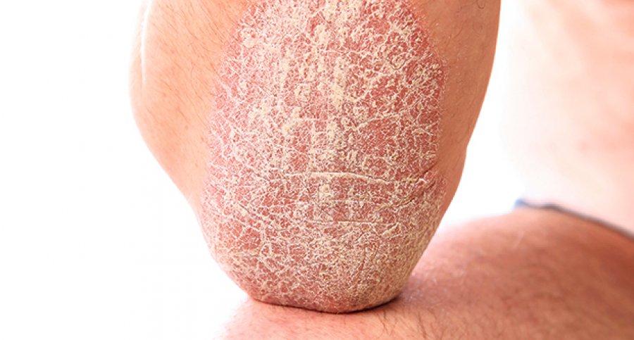 Большой палец на ноге лечение бурсита