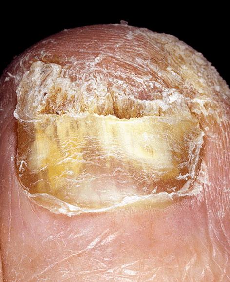 Как удалить грибок ногтя без операции