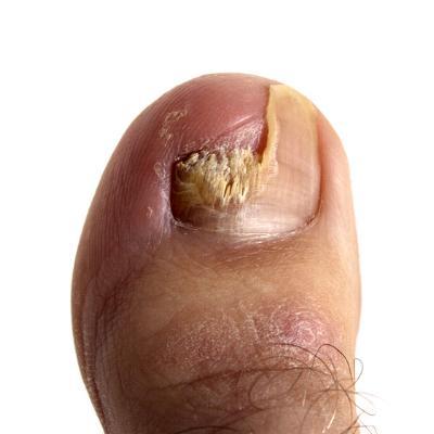 От чего появляется бородавки на пальцах рук