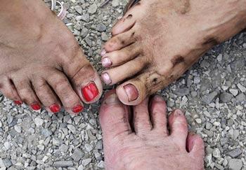 Можно ли вылечить грибок ногтей на ногах запущенный