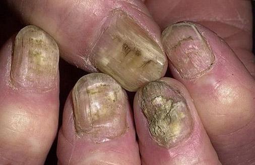Трескается ли кожа при грибке ногтей