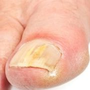 Средства лечения грибка стопы и ногтей
