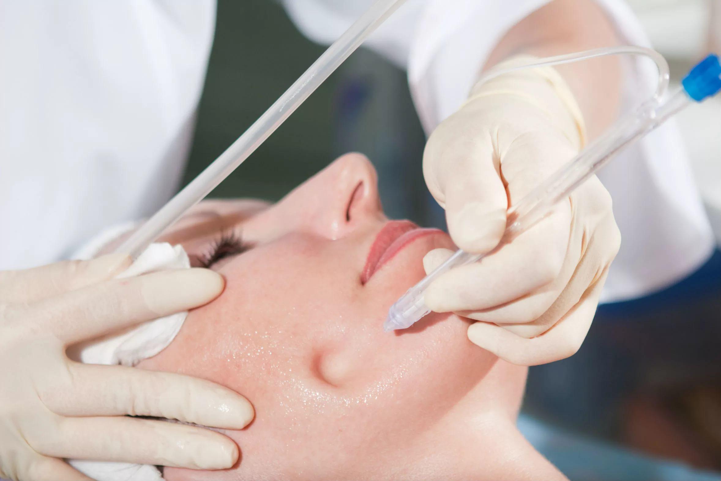 Чистка черных точек у косметолога