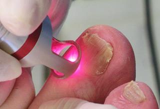 Проявления грибка на ногтях рук