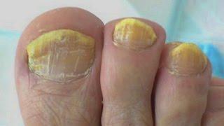 Эфирные масла при грибке ногтей отзывы
