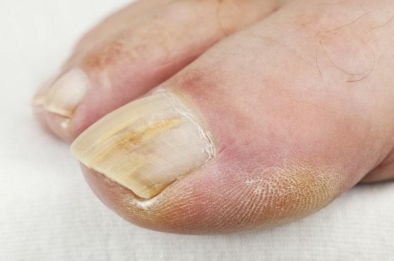 Мазь от грибка ногтей эффективная и недорогая