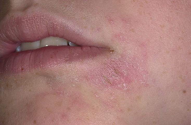 Болезни тепличных огурцов и их лечение