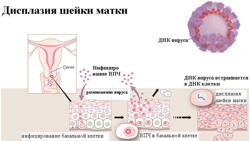Как лечить вирус папилломы человека на шейке матки