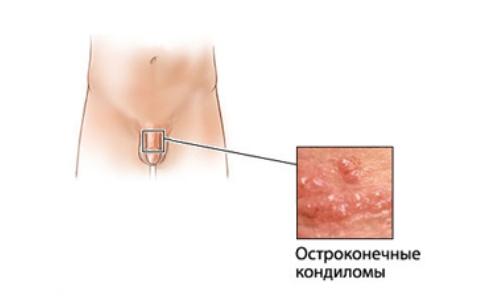 devushka-drochit-fotografii