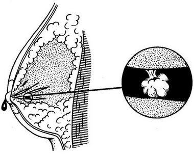 Как рекомендуется лечить псориаз на груди