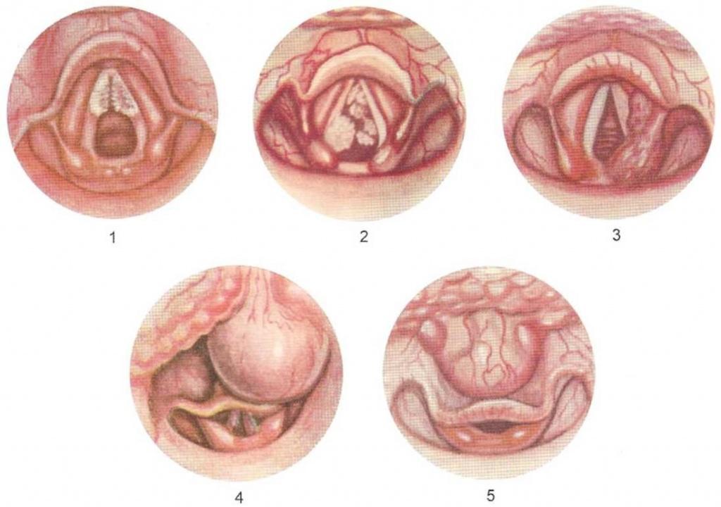 методы выявления паразитов в организме человека