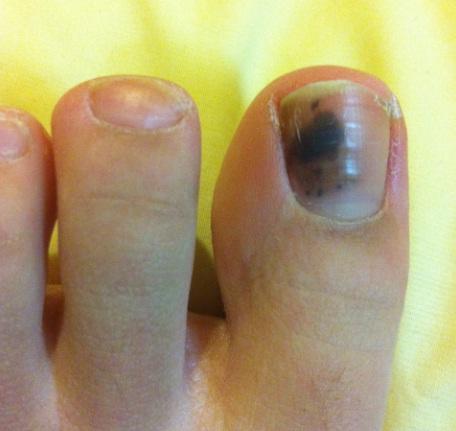 Чем лечить ноготь от грибка если он потемнел