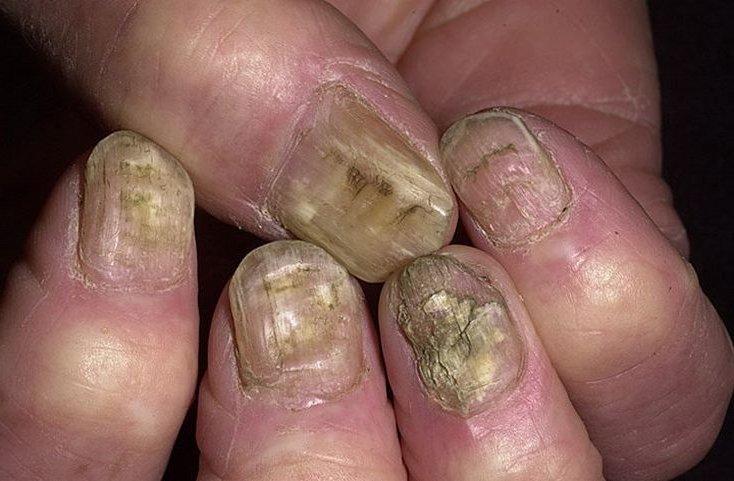Грибок на ногте большого пальца как лечить
