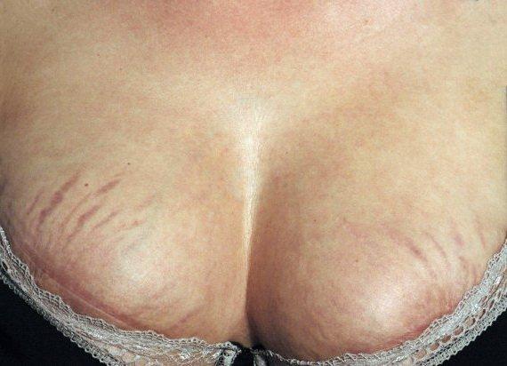 Растяжки при беременности на груди