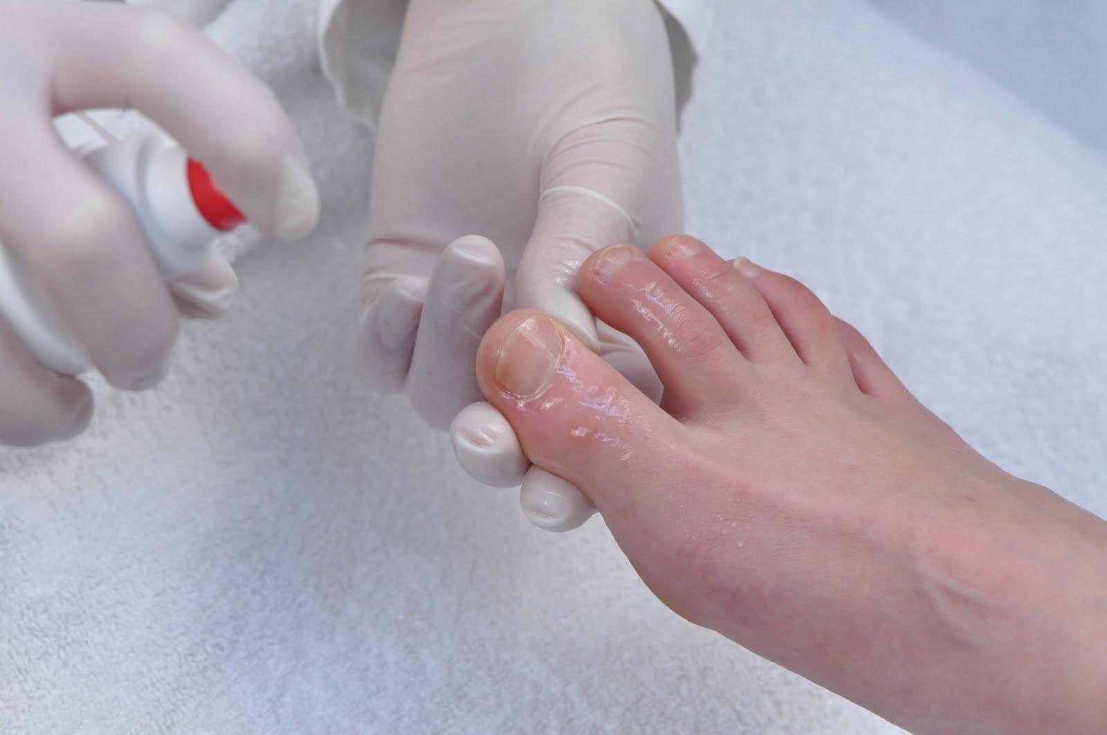 Подногтевой грибок лечение народными средствами