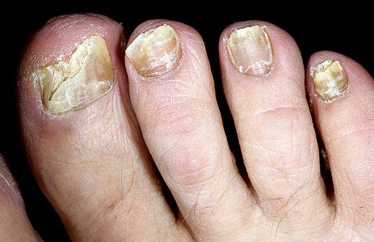 Стоп Актив - масло от грибка ногтей купить в Казинке