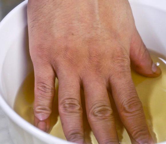 Лечение псориаза уксусом яблочным