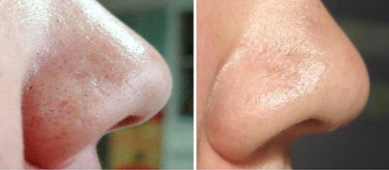 Чистка лица от черных точек в домашних