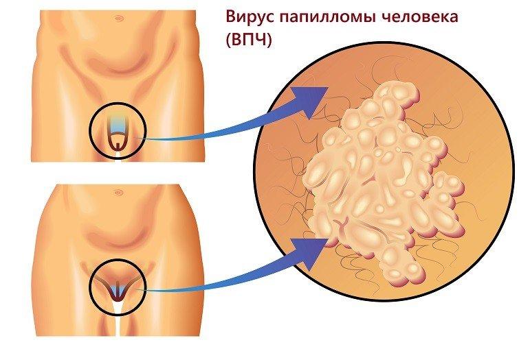 Лечение папиллом на интимных местах