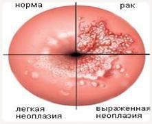 Папилломавирус 16 типа у женщин